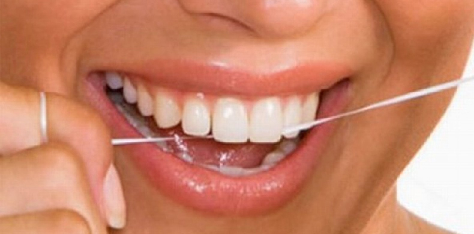 Uso correto do fio dental previne doenças bucais
