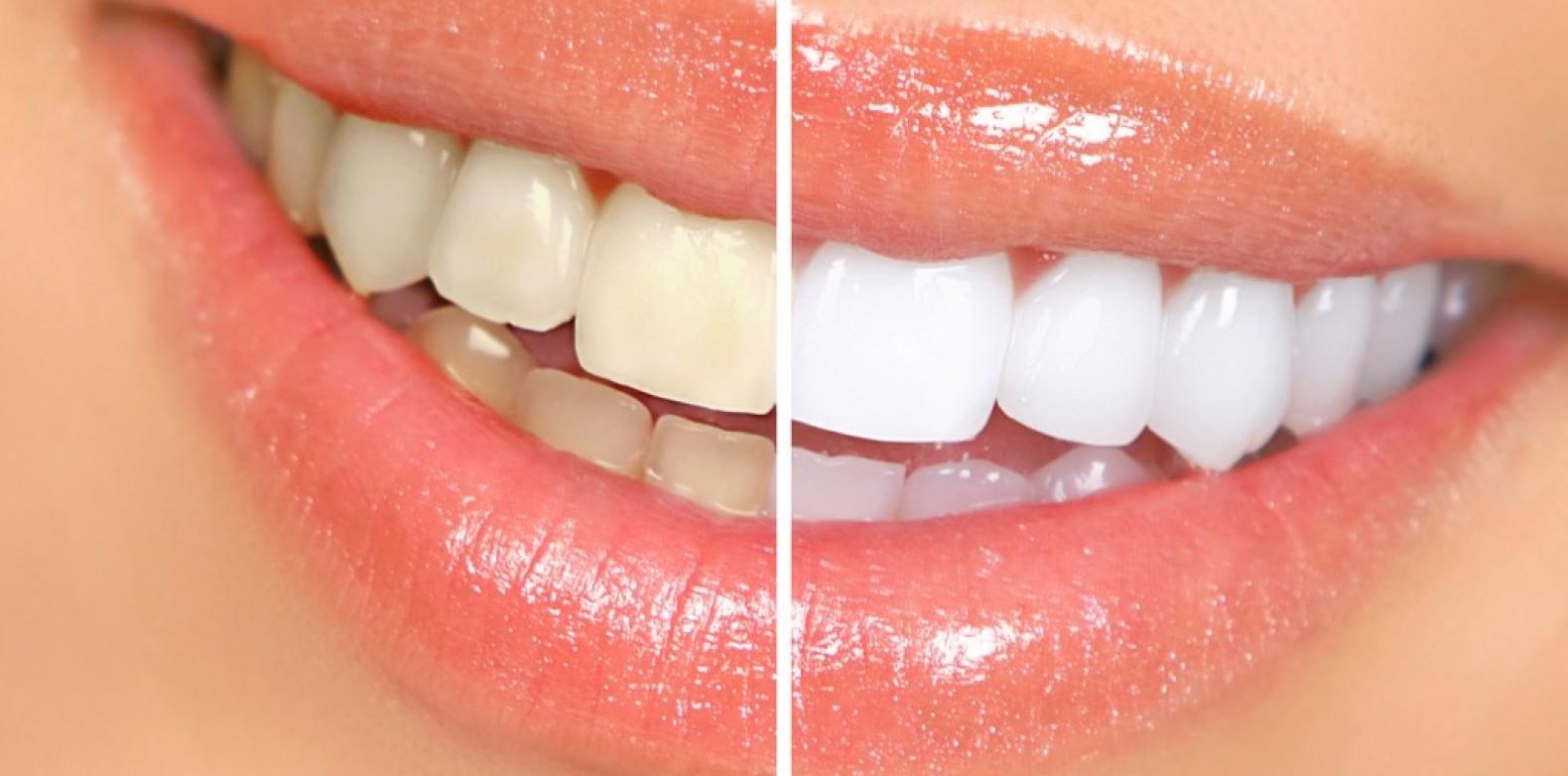 O que são lentes de contato dentais?