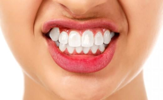 Mordida cruzada pode causar bruxismo e perda dos dentes